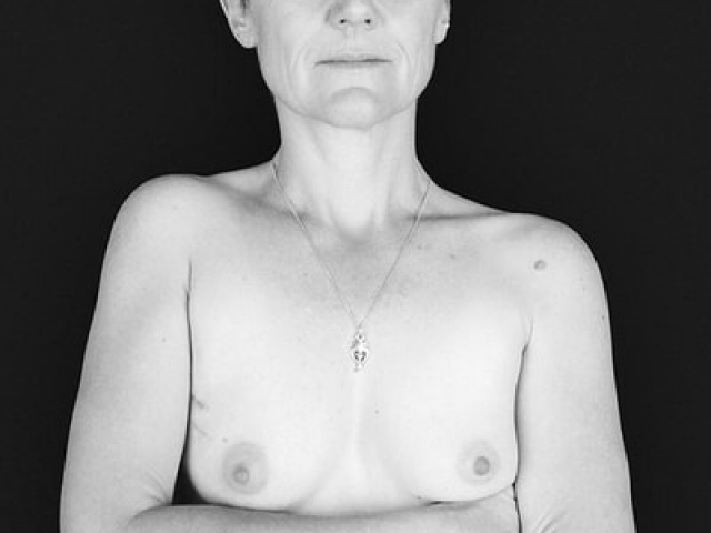 Breast Cancer_03