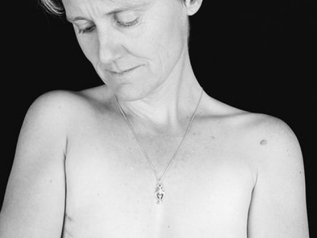 Breast Cancer_04